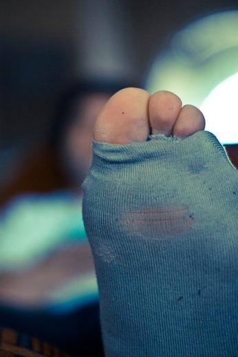 sock_holes